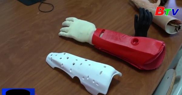Tunisia phát triển bàn tay nhân tạo bằng công nghệ in 3D